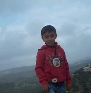 9-year-old Abd el-Rahman Yasir Shatawi, who was shot by Israeli soldiers